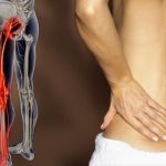 Điều trị đau thắt lưng trái tê chân trái cực kỳ hiệu quả