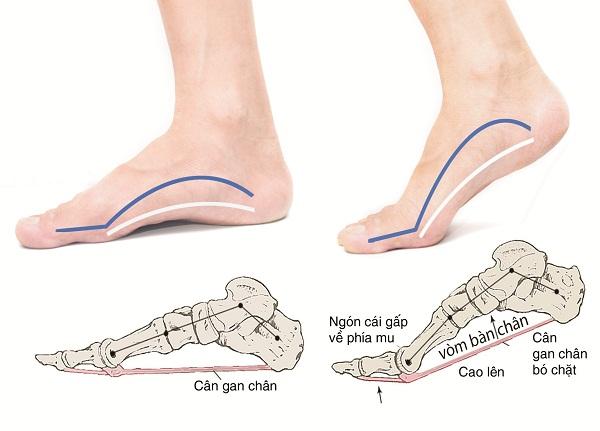 Đau xương mu bàn chân là bệnh gì