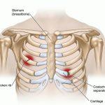 Tìm hiểu nguyên nhân gây ra tình trạng đau xương sườn phải