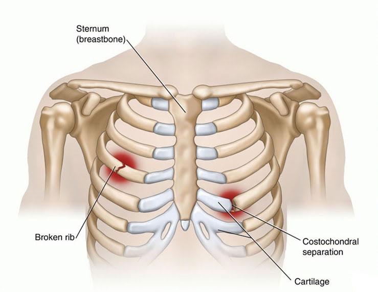 Những lưu ý dành cho người bị đau xương sườn phải