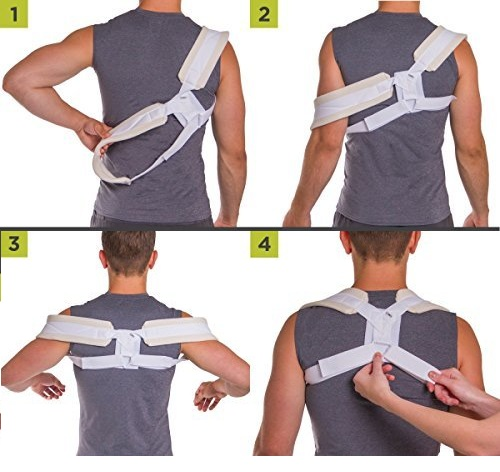 Gãy xương đòn đeo đai số 8 bao lâu