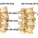 Nguyên nhân triệu chứng và cách phòng tránh bệnh gai cột sống