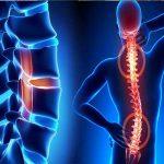 Cung cấp các cách trị gai cột sống tại nhà cho người bệnh áp dụng