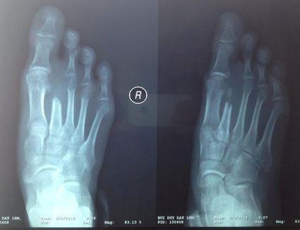 Phương pháp điều trị gãy xương bàn chân số 5
