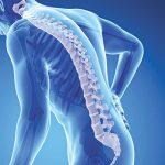 Loãng xương nguyên phát là bệnh gì
