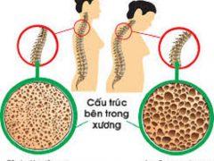 Loãng xương có mấy cấp độ theo nguyên nhân gây ra