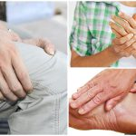 Thông tin về bệnh thấp khớp và cách điều trị hiện nay