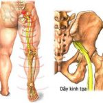 Nguyên nhân thoát vị đĩa đệm gây đau chân cùng biến chứng