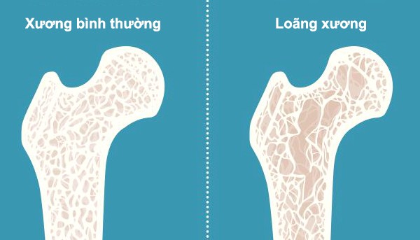 Bệnh loãng xương có thể gây ra cơn đau từ đầu gối trở xuống