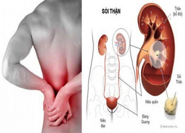Nguyên nhân khiến bạn bị đau lưng dưới bên trái
