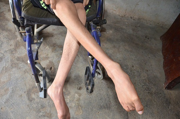 Triệu chứng của bệnh teo cơ chân