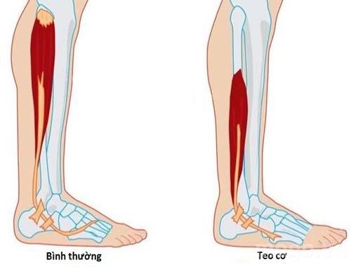 Triệu chứng đau thần kinh tọa teo cơ chân