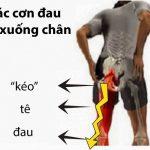 Tổng hợp các triệu chứng gai cột sống lưng cùng cách chữa trị