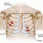 Những triệu chứng gãy xương sườn mà bạn dễ dàng nhận biết