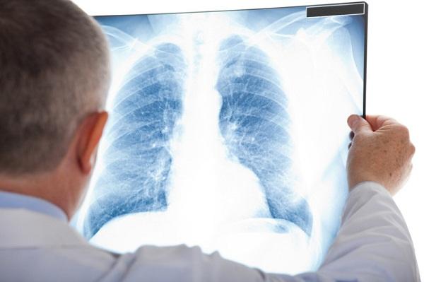 Những biểu hiện rõ rệt khi bị ung thư phổi di căn vào xương