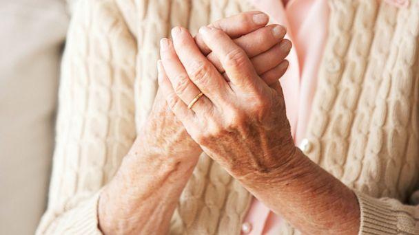 Tại sao nên dùng thuốc nam và đông y để điều trị viêm đa khớp