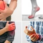 5 Dấu hiệu viêm khớp dạng thấp chỉ cần nhìn là ra bệnh
