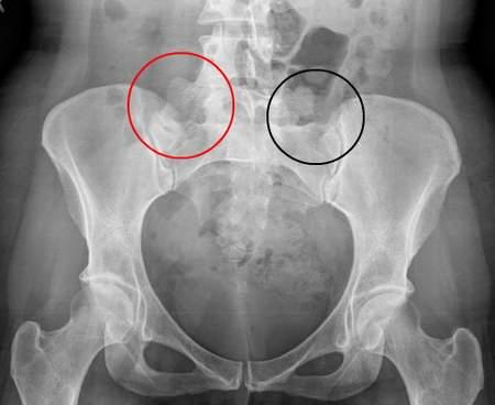Khái quát vê bệnh viêm khớp xương chậu