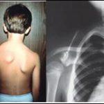 Tìm hiểu về hiện tượng xương bả vai bị lồi cùng cách điều trị