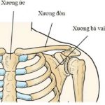 Gãy xương đòn di lệch là hiện tượng cực kỳ nguy hiểm